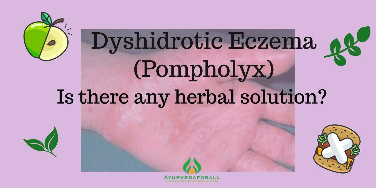 Dyshidrotic Eczema (Pompholyx)- Causes, Signs, Symptoms